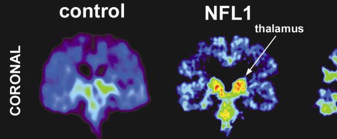 Brain Injury, Chronic; Encephalopathy, Post-Traumatic, Chronic