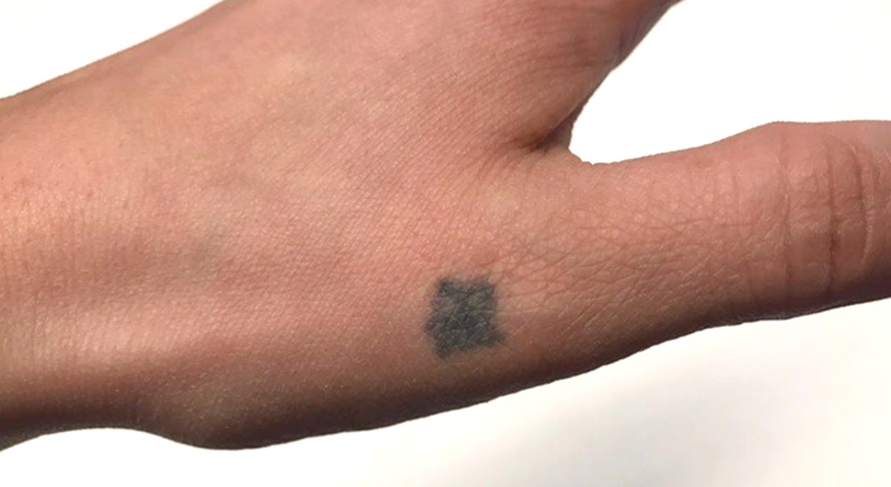 Eliminar Tatuajes Con Láser Archivos Esthetic Bcn