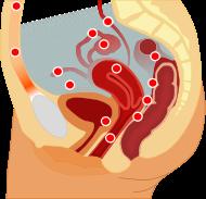 Endometriosis loc en.svg