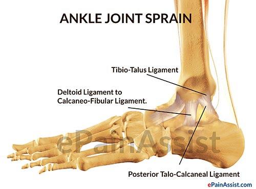 Deltoid Ligament injury treatment