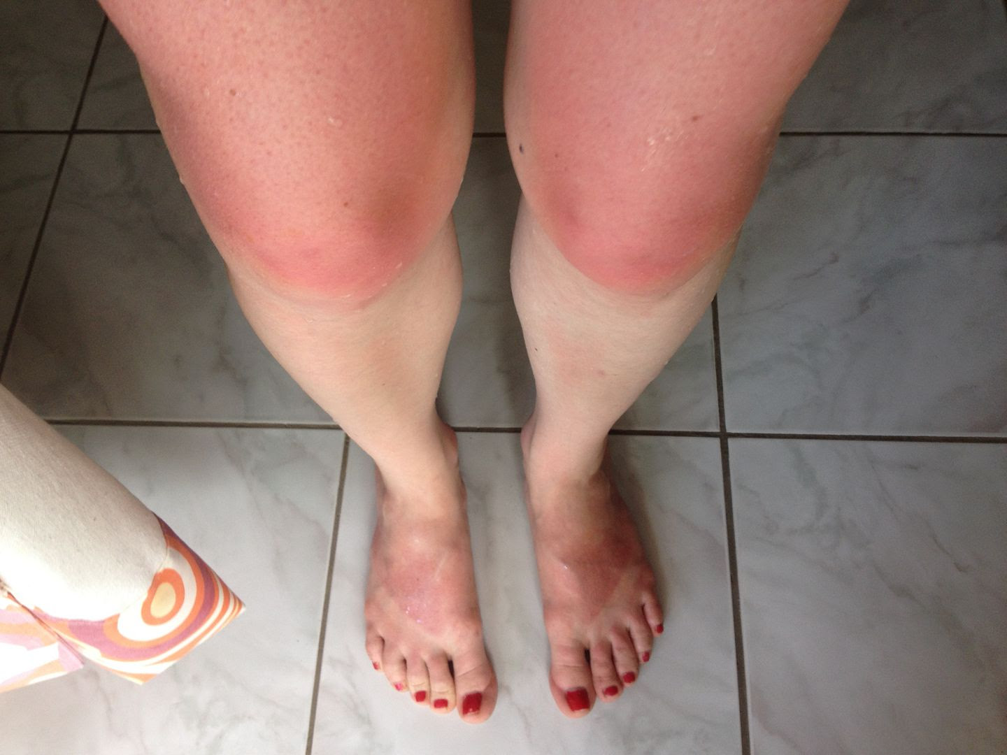 Sunburn from our moped ride along the coast of Palawan, Philippines photo 2014-03-27124217_zps3b97a4d6.jpg
