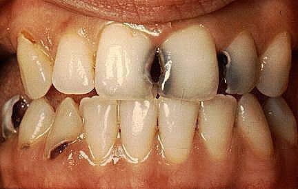Resultado de imagem para dentes podres