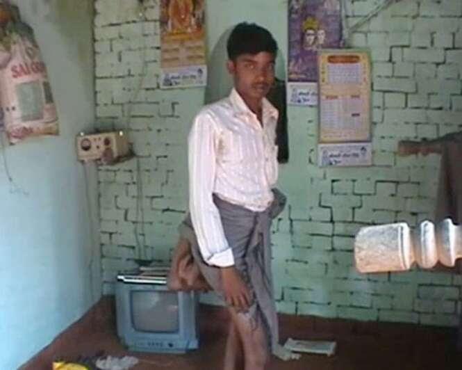 Homem nasce com quatro pernas e é rotulado como ser maligno em aldeia