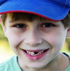 Spencer's Teeth 2