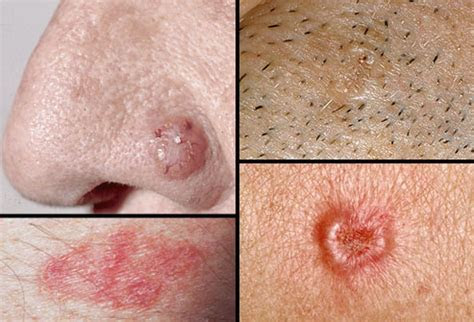 Basal cell carcinoma skin cancer symptoms and treatments