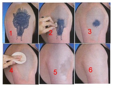 Remove Tattoos With Cream ~ homemade tattoo removal methods
