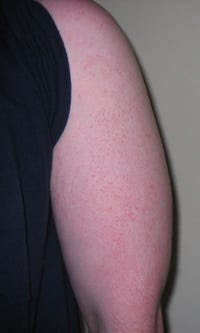 Signs Of Disease On Skin - Business Insider
