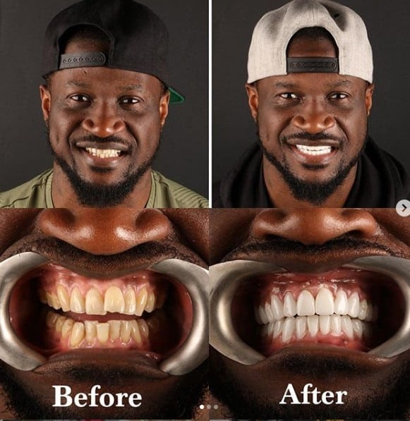 EXCLUSIVE - Peter Okoye apologizes to ladies he previously kissed after fixing his teeth and undergoing teeth whitening