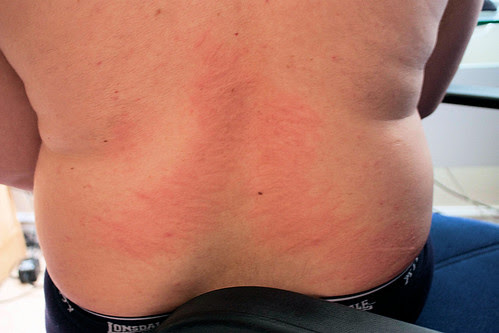 what causes hives on your body