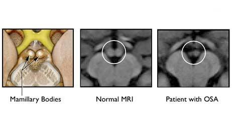 brain memory mri 462 Sleep Apnea May Damage Brain Cells Associated With Memory
