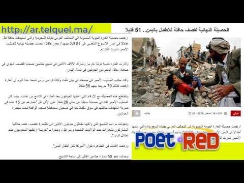 الحصيلة النهائية لقصف حافلة للأطفال باليمن 51 قتيل