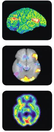 Brain Scan Depression