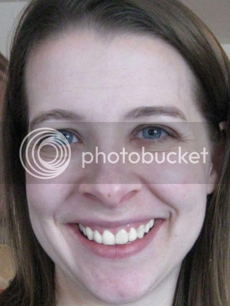 digital tooth whitening