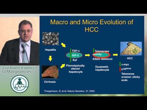 Novel treatments for HCC in the era of hepatitis C therapies