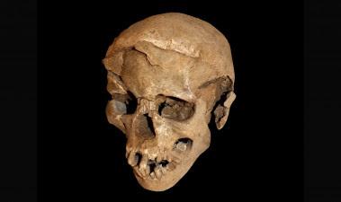 <p>Los esqueletos hallados en Nataruk (Kenia) muestran signos de un posible ataque intergrupal en el pasado. En la imagen, uno de los cráneos encontrados, en el que se aprecian las lesiones en las partes frontal y lateral. / Marta Mirazon Lahr</p>