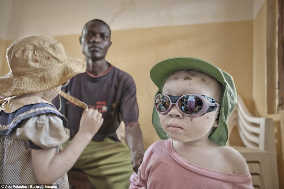An albino person's skin has little or no melanin, which is an effective blocker of solar radiation, and this makes them extremely vulnerable to the sun. These children were sunglasses and hats to protect themselves