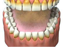 Smoking stains on teeth