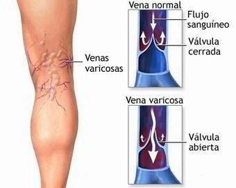 Prevenir y eliminar varices