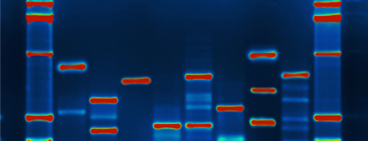 DNA RESIZED 3080247531_561d88e2e7_o