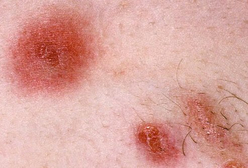 MRSA skin infection.
