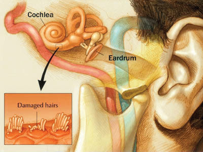 Ototoxicity - Ototoxic drugs - Internal ear damaging drugs - Tinnitus - A list of ototoxic drugs - Sensorineural hearing loss - Hair cells (HCs) damage in inner ear - List of ototoxic medications - Drug induced hearing loss