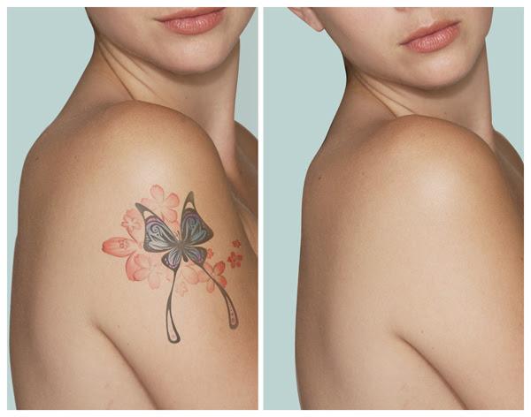 Eliminar Un Tatuaje Con Laser Tattoos Guatemala