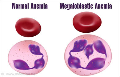 Megaloblastic Anemia Causes Symptoms Signs Diagnosis