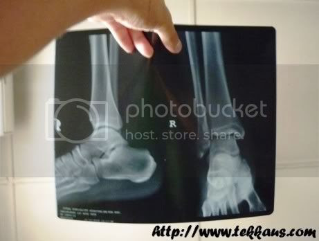 My X-Rayed Ankle