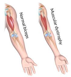 http://uploads.medicaljane.com/wp-content/uploads/2015/03/muscular-dystrophy-explained.jpg