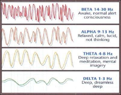 Tipos de ondas cerebrais em EEG