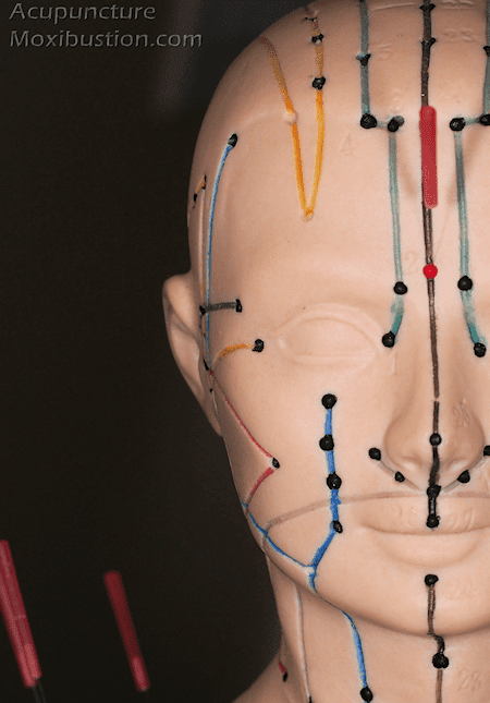 Acupuncture for Headaches and MigrainesAcupuncture Moxibustion