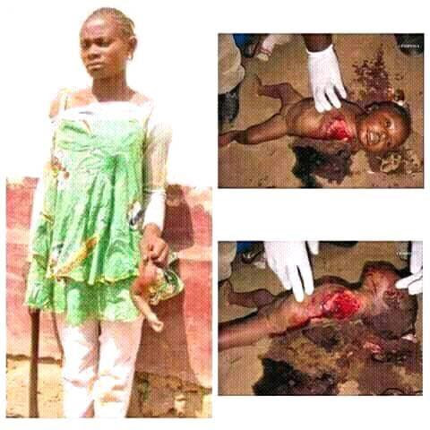Look at what this wicked maid did to this innocent child [GRAPHIC PICS]
