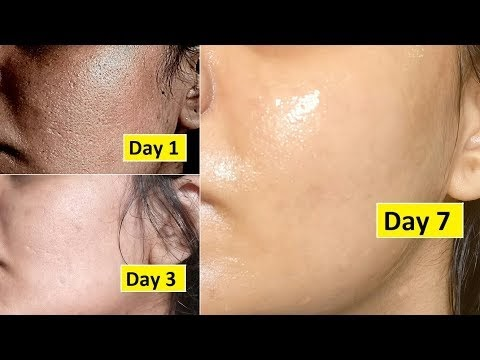 Skin Repair | Close Large OPEN PORES in 1 week,