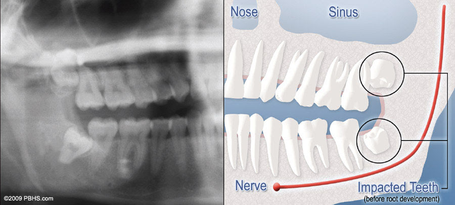 How Much Does Wisdom Teeth Removal Cost Without Insurance Teethwalls