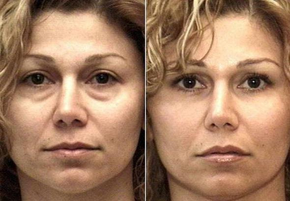 плазмолифтинг для волос отзывы фото до и после