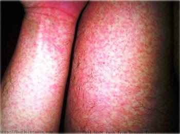 1. Pale or Flushing Pink Rash e1316540143575 10 Dengue Fever Symptoms