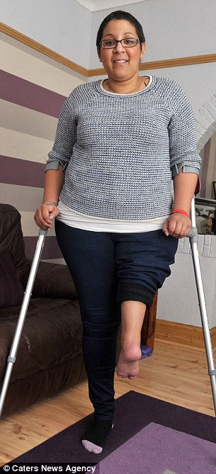 She needed the radical surgery after her bone cancer returned for the second time. She underwent the op at the Royal Orthopaedic Hospital in Birmingham in July and is now adapting to life with her new limb