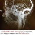 figure 1 app brain scan