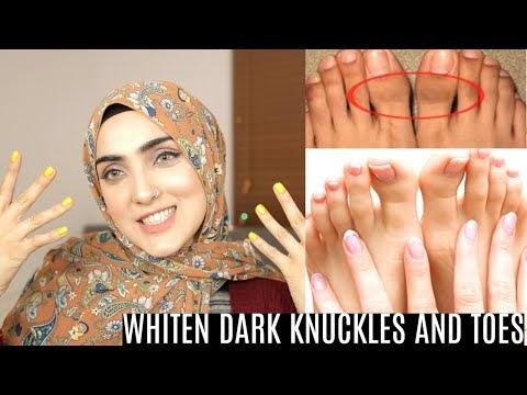 HOW TO BRIGHTEN HANDS FEET AND LIGHTEN KNUCKLES+TOES