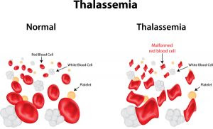 Thalassemia blood