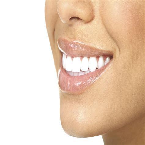 DeJesus Dental Teeth Whitening in Bridgeport, CT  Wedding