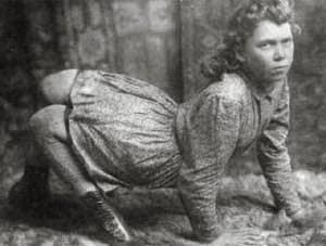 Berikut ini ada beberapa insan yang hidup dari era ke  5 Manusia Paling Aneh di Abad 19