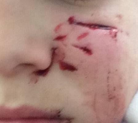Cicatrizes profundas no rosto do menino após ataque.