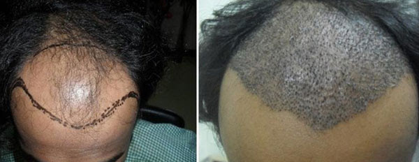 Baldness, Baldness treatment, Hair Replacement, Hair Weaving, Microwefting, Bonding Ludhiana