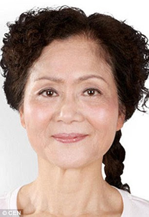 A 56-year-old woman (pictured before) sought treatment for the sagging skin on her face and neck, wrinkles, eye aging and age spots. She also had work done on her nose