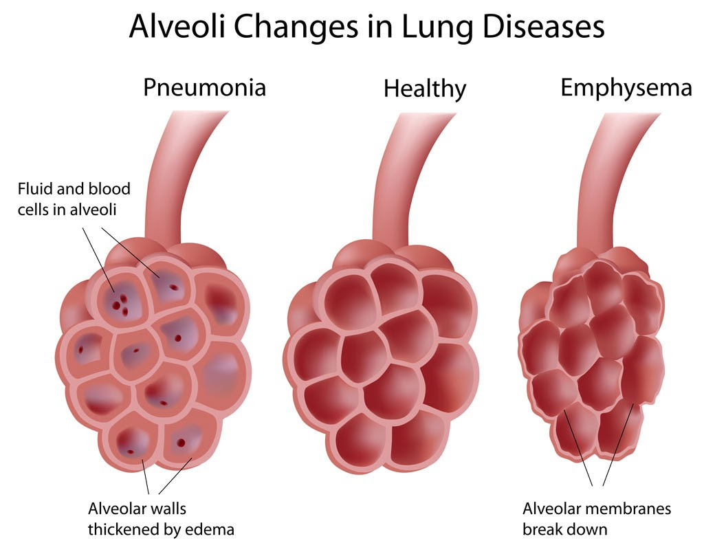 Alveoli in lung diseases 1024x806