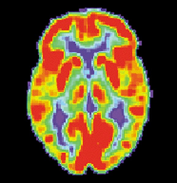 File:PET Normal brain.jpg