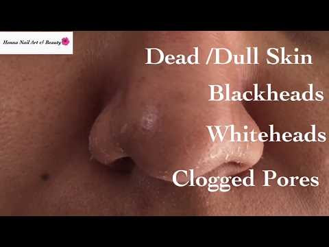How  to Remove Blackheads Permanently At Home | Remove Blackheads Painlessly
