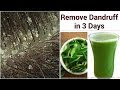 How To Get Rid Of Dandruff Quickly And Naturally