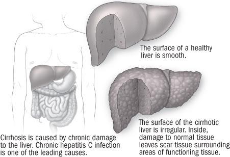 illustration of liver showing damage from cirrhosis